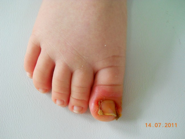 wrastający paznokieć zaraz po zatamponowaniu a