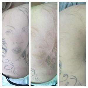 usuwanie tatuazu sieradz