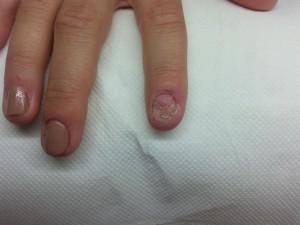 rekonstrukcja paznokcia - przed zabiegiem - podologia
